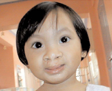Juliana after her cleft surgery